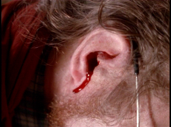 [Image: 11-ear-bleeding1.jpg]